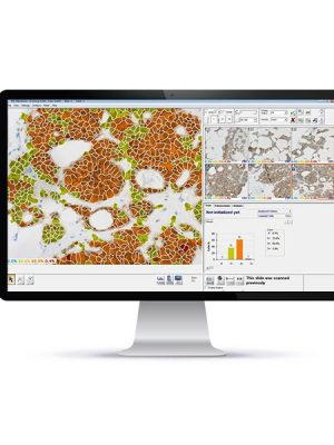 HiPath – Computer Aided IHC Scoring